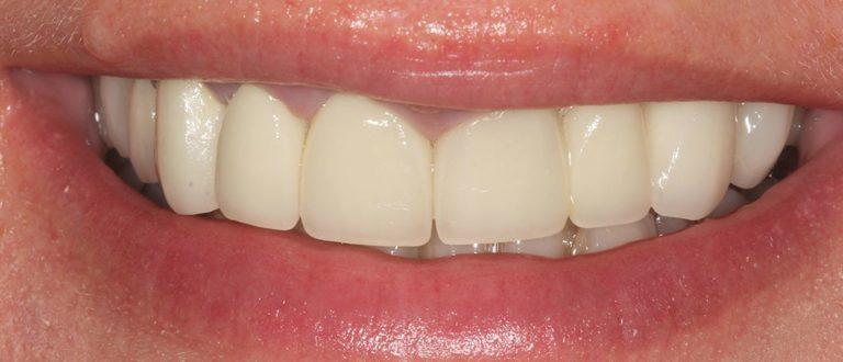 dental smile makeover in essex