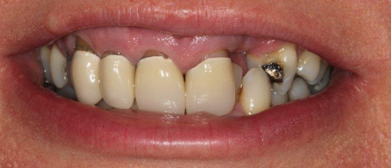 basildon dentist smile makeover