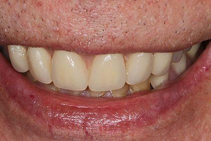 John after smile makeover at Dental Beauty Basildon in essex