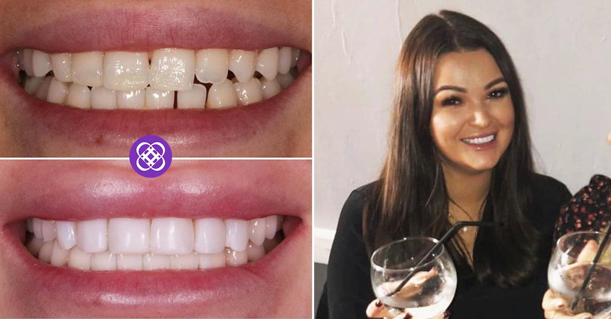 dental beauty testimonial