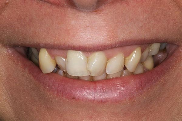 teeth straightening dental beauty carlie